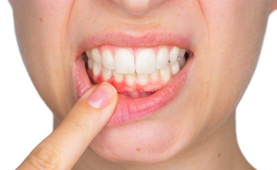 10 أعراض وعلامات تدل على نقص الفيتامينات يمكنك كشفها بسهولة صورة رقم 3