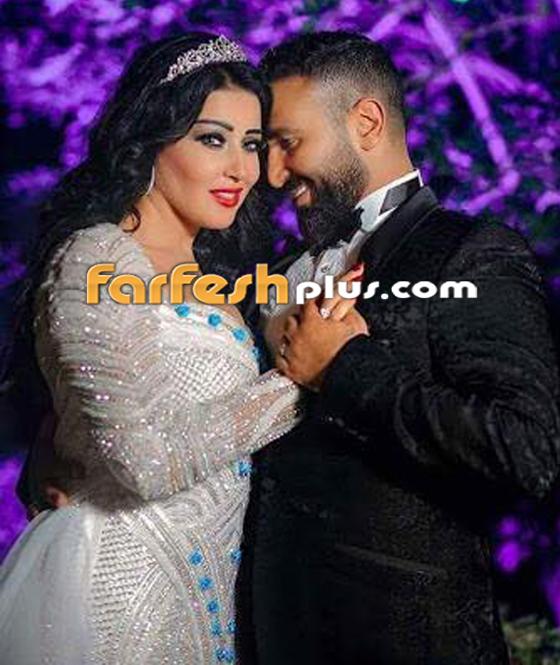 مدحت صالح يؤكد زواجه سمية الخشاب عرفياً، وهي تنفي وتكذّبه! صورة رقم 4
