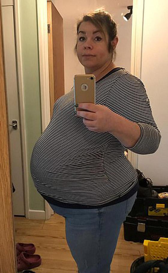 حكاية غريبة: سيدة تحمل مرتين خلال أسبوع وتلد ثلاثة توائم صورة رقم 8