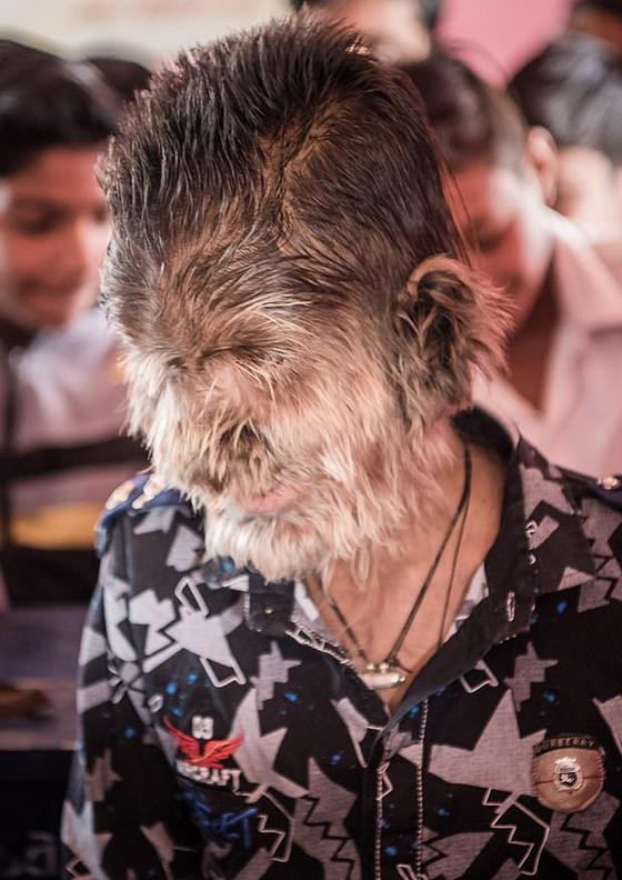 بالفيديو والصور.. ما هي حكاية الطفل الذئب الهندي؟! صورة رقم 2