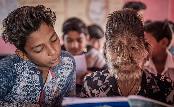 بالفيديو والصور.. ما هي حكاية الطفل الذئب الهندي؟! صورة رقم 5