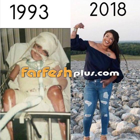 قصة حقيقية مؤثرة: كرهت نفسها بسبب حروق جسدها لكن طفلها أنقذها صورة رقم 1