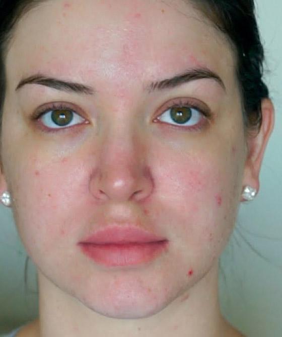 صورة رقم 6 - احذري.. مستحضرات التجميل تهدد البشرة بهذا المرض