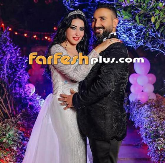 سر طلاق سمية الخشاب وأحمد سعد: مريض نفسيا يضربها ويرفض الانجاب! صورة رقم 8