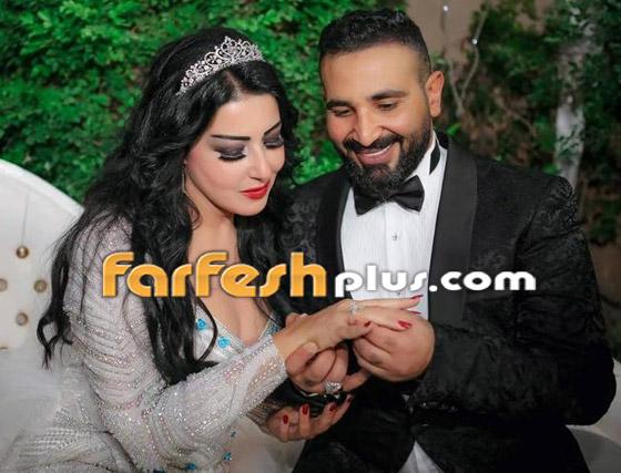 سر طلاق سمية الخشاب وأحمد سعد: مريض نفسيا يضربها ويرفض الانجاب! صورة رقم 7