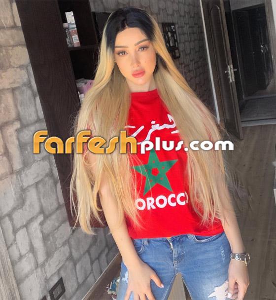 بسمة بوسيل زوجة تامر حسني تغيّر لون شعرها (على الموضة)، هل أعجبتك؟ صورة رقم 1