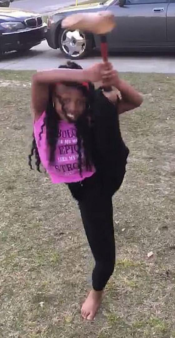 صورة رقم 4 - فيديو مذهل: طفلة تتحدى الاعاقة وترقص بساقها الصناعية بدلا من المبتورة