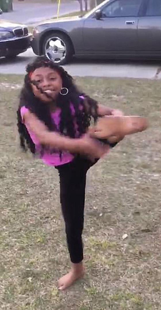 صورة رقم 5 - فيديو مذهل: طفلة تتحدى الاعاقة وترقص بساقها الصناعية بدلا من المبتورة