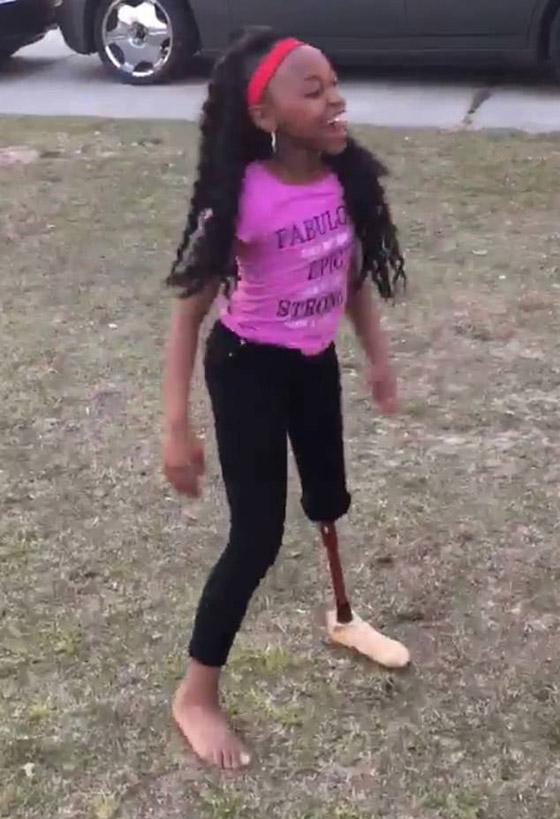 صورة رقم 6 - فيديو مذهل: طفلة تتحدى الاعاقة وترقص بساقها الصناعية بدلا من المبتورة
