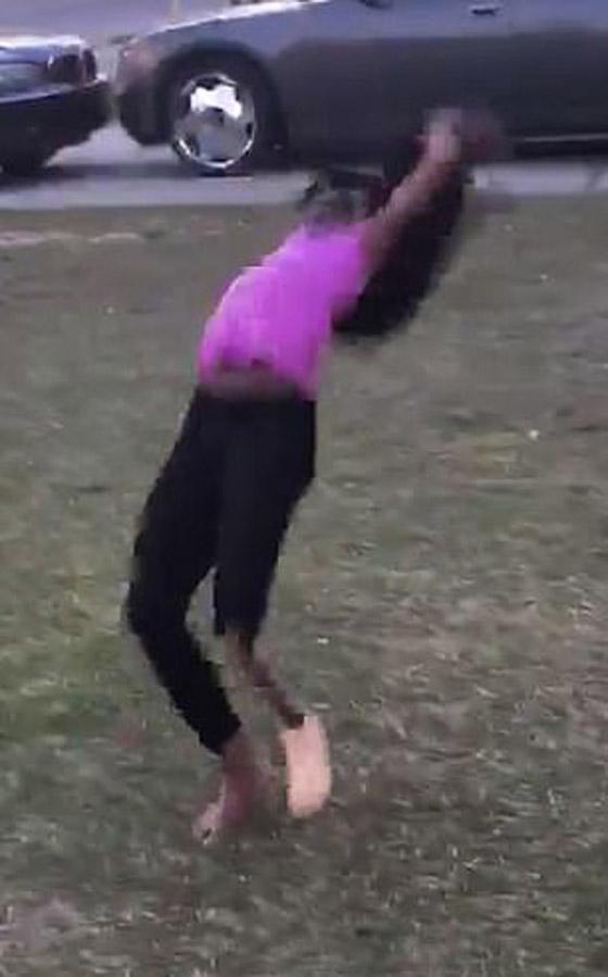 صورة رقم 7 - فيديو مذهل: طفلة تتحدى الاعاقة وترقص بساقها الصناعية بدلا من المبتورة