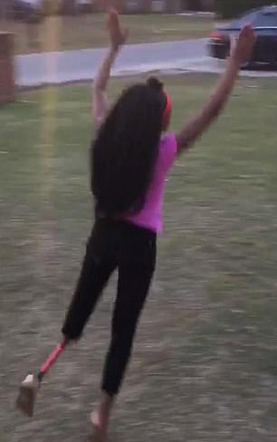 صورة رقم 8 - فيديو مذهل: طفلة تتحدى الاعاقة وترقص بساقها الصناعية بدلا من المبتورة