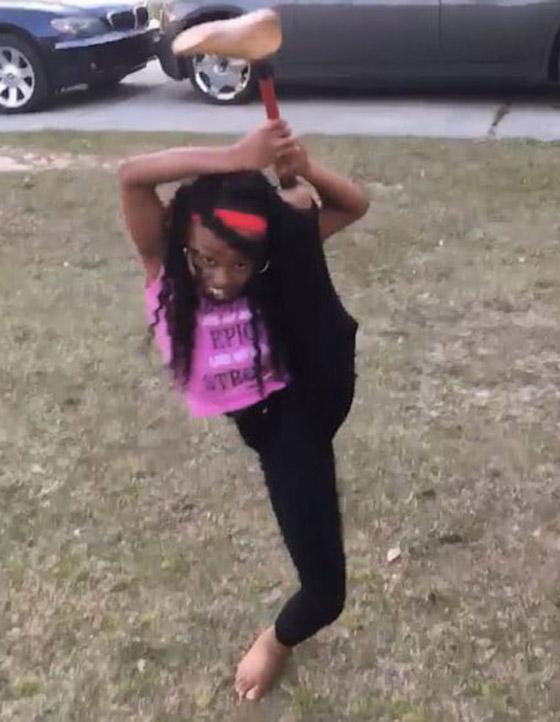 صورة رقم 9 - فيديو مذهل: طفلة تتحدى الاعاقة وترقص بساقها الصناعية بدلا من المبتورة