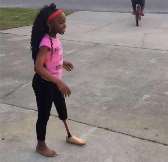 صورة رقم 10 - فيديو مذهل: طفلة تتحدى الاعاقة وترقص بساقها الصناعية بدلا من المبتورة