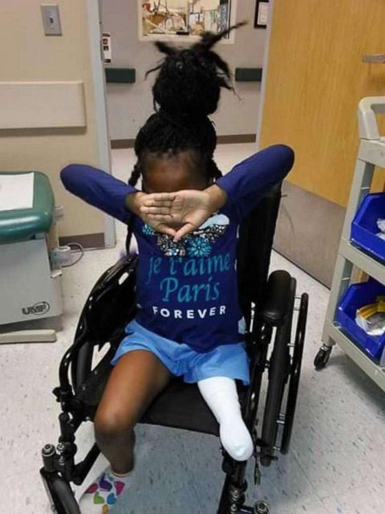 صورة رقم 1 - فيديو مذهل: طفلة تتحدى الاعاقة وترقص بساقها الصناعية بدلا من المبتورة