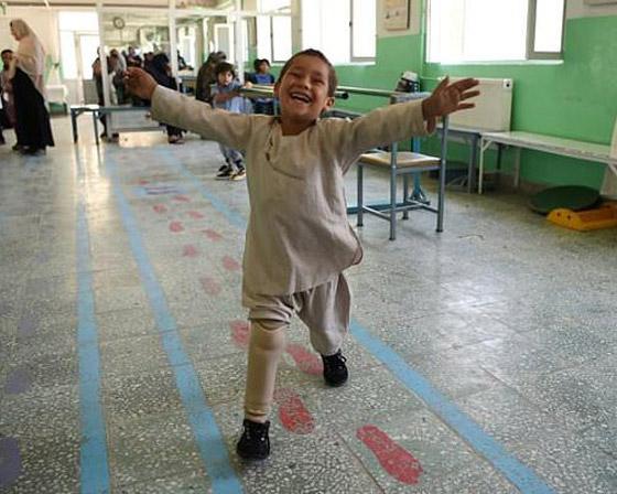 صورة رقم 1 - فيديو مؤثر.. قصة الطفل الأفغاني مبتور القدم الذي خطف قلوب العالم