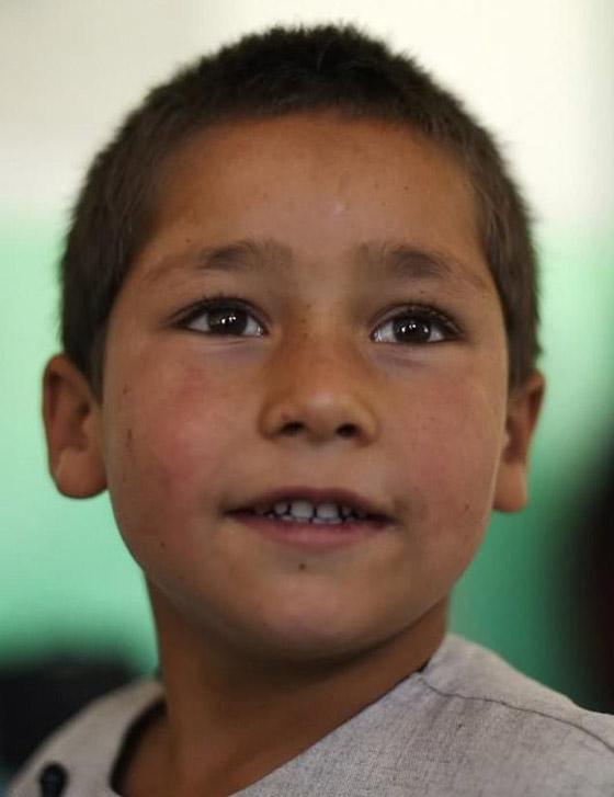 صورة رقم 3 - فيديو مؤثر.. قصة الطفل الأفغاني مبتور القدم الذي خطف قلوب العالم