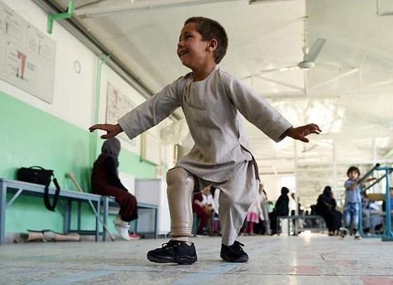 صورة رقم 4 - فيديو مؤثر.. قصة الطفل الأفغاني مبتور القدم الذي خطف قلوب العالم