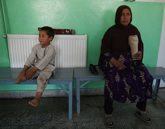 صورة رقم 5 - فيديو مؤثر.. قصة الطفل الأفغاني مبتور القدم الذي خطف قلوب العالم