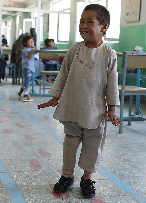 صورة رقم 2 - فيديو مؤثر.. قصة الطفل الأفغاني مبتور القدم الذي خطف قلوب العالم