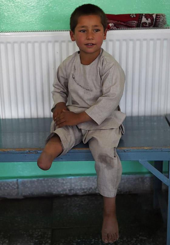 صورة رقم 8 - فيديو مؤثر.. قصة الطفل الأفغاني مبتور القدم الذي خطف قلوب العالم