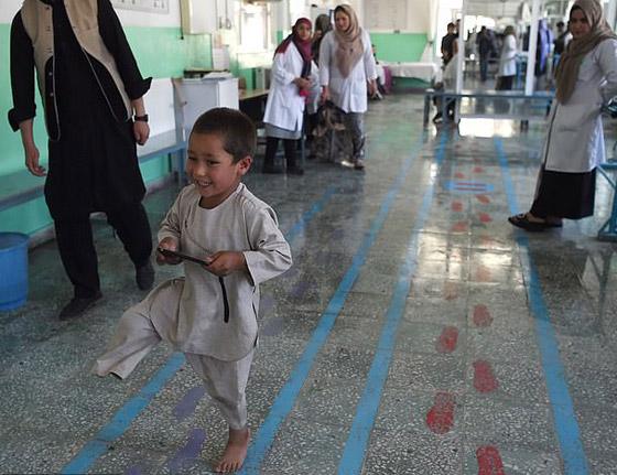 صورة رقم 9 - فيديو مؤثر.. قصة الطفل الأفغاني مبتور القدم الذي خطف قلوب العالم