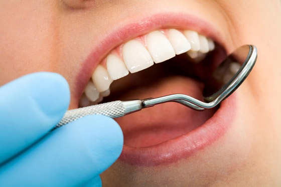 كيف تحمي أسنانك من التسوس؟.. 8 نصائح ذهبية صورة رقم 6