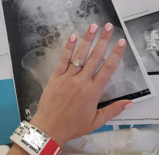 نصحها خطيبها وهي نائمة بأن تبتلع خاتمها، وعندما أفاقت تفاجأت بأنها سمعت كلامه! صورة رقم 2