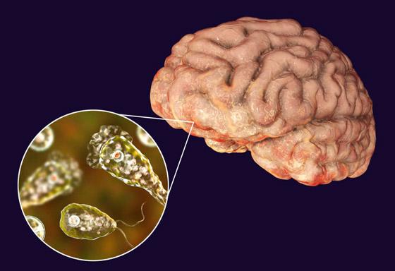 كائن مميت يتسلل إلى دماغ فتاة أثناء السباحة ويفتك بها في 7 أيام! صور صورة رقم 7