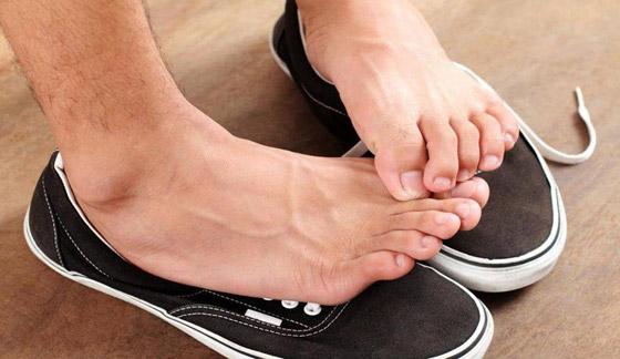 منعا للإحراج.. هكذا تتخلص من رائحة القدمين والحذاء الكريهة صورة رقم 2