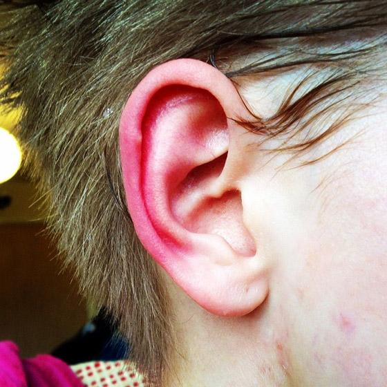 ليس كما تظن.. احمرار الأذن حالة طبية يجب علاجها.. وهذه الأسباب! صورة رقم 3
