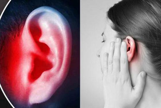 ليس كما تظن.. احمرار الأذن حالة طبية يجب علاجها.. وهذه الأسباب! صورة رقم 4