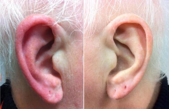 ليس كما تظن.. احمرار الأذن حالة طبية يجب علاجها.. وهذه الأسباب! صورة رقم 7