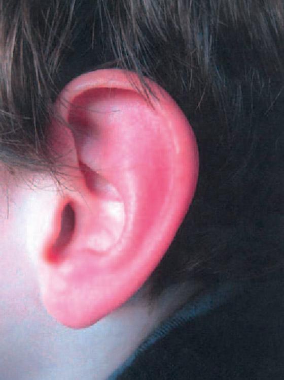 ليس كما تظن.. احمرار الأذن حالة طبية يجب علاجها.. وهذه الأسباب! صورة رقم 13