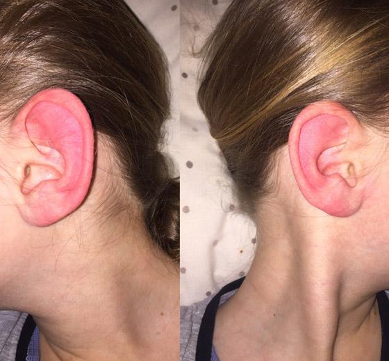 ليس كما تظن.. احمرار الأذن حالة طبية يجب علاجها.. وهذه الأسباب! صورة رقم 9