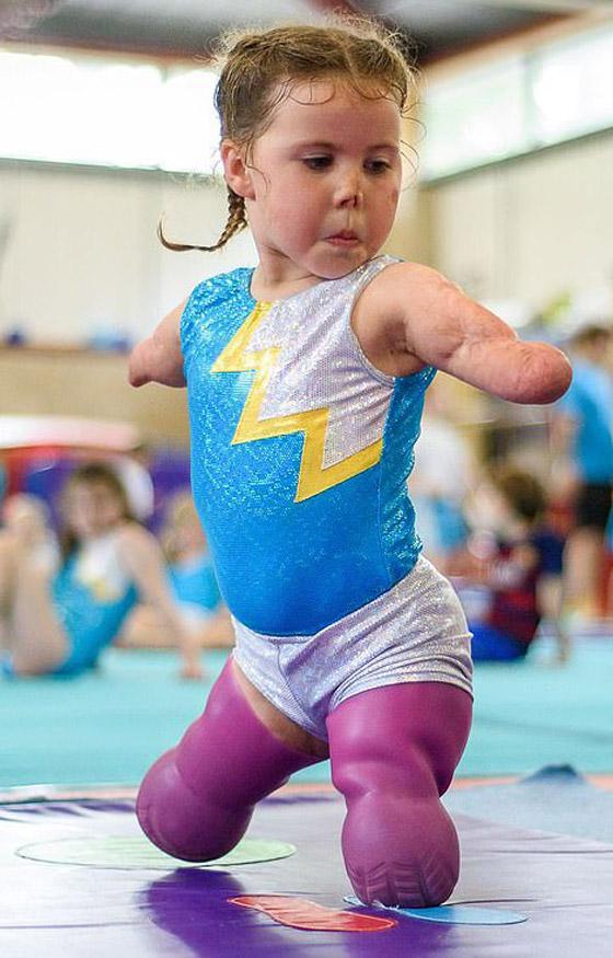صورة رقم 7 - بطلة رغم الظروف.. طفلة فقدت أطرافها تهزم إعاقتها وتصبح نجمة!