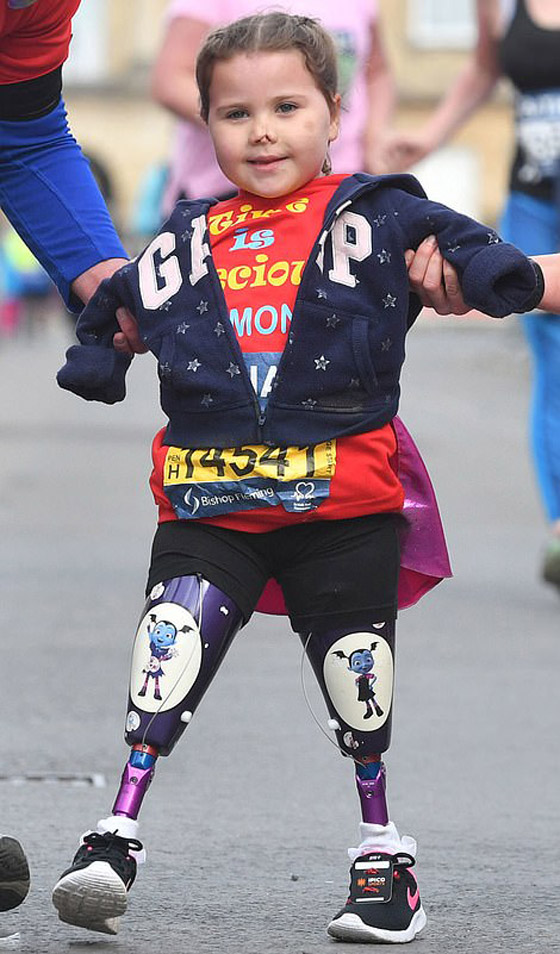 صورة رقم 8 - بطلة رغم الظروف.. طفلة فقدت أطرافها تهزم إعاقتها وتصبح نجمة!