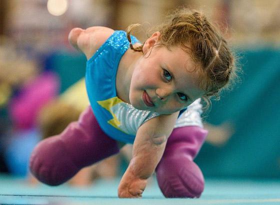 صورة رقم 1 - بطلة رغم الظروف.. طفلة فقدت أطرافها تهزم إعاقتها وتصبح نجمة!