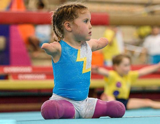 صورة رقم 10 - بطلة رغم الظروف.. طفلة فقدت أطرافها تهزم إعاقتها وتصبح نجمة!