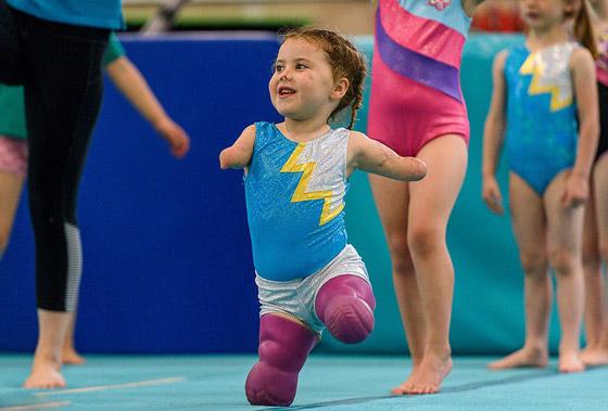 صورة رقم 12 - بطلة رغم الظروف.. طفلة فقدت أطرافها تهزم إعاقتها وتصبح نجمة!