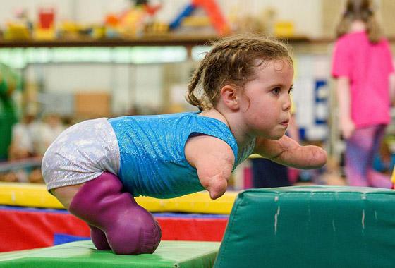 صورة رقم 16 - بطلة رغم الظروف.. طفلة فقدت أطرافها تهزم إعاقتها وتصبح نجمة!