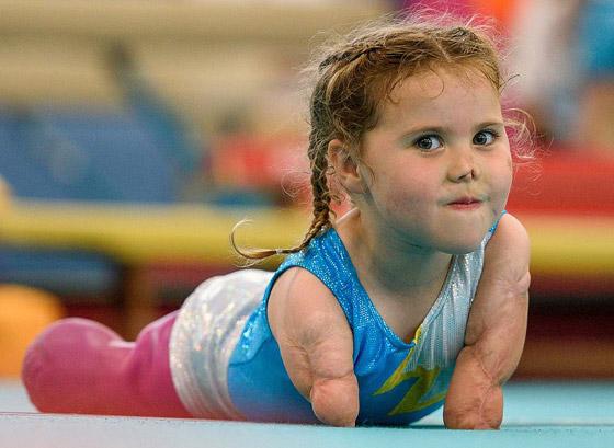 صورة رقم 18 - بطلة رغم الظروف.. طفلة فقدت أطرافها تهزم إعاقتها وتصبح نجمة!