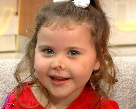 صورة رقم 19 - بطلة رغم الظروف.. طفلة فقدت أطرافها تهزم إعاقتها وتصبح نجمة!