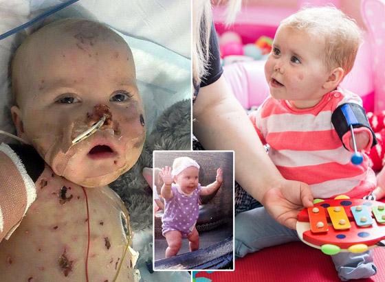 صورة رقم 4 - بطلة رغم الظروف.. طفلة فقدت أطرافها تهزم إعاقتها وتصبح نجمة!