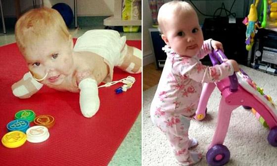 صورة رقم 3 - بطلة رغم الظروف.. طفلة فقدت أطرافها تهزم إعاقتها وتصبح نجمة!