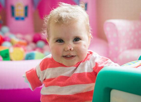 صورة رقم 2 - بطلة رغم الظروف.. طفلة فقدت أطرافها تهزم إعاقتها وتصبح نجمة!