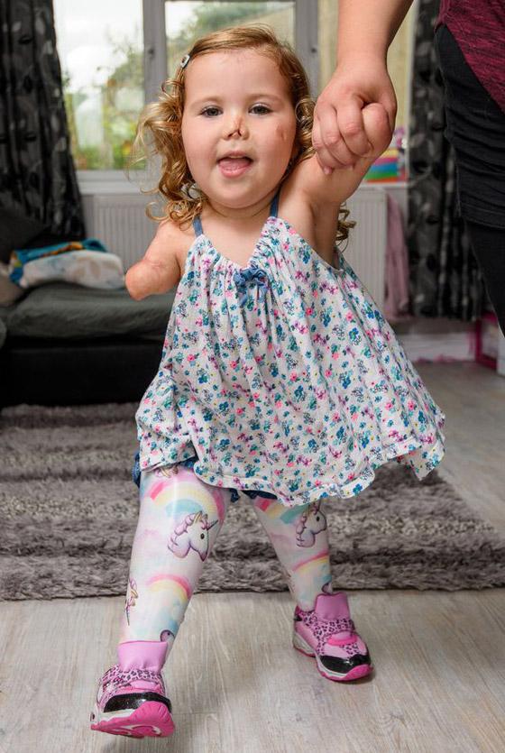 صورة رقم 21 - بطلة رغم الظروف.. طفلة فقدت أطرافها تهزم إعاقتها وتصبح نجمة!