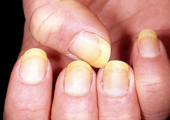 الأظافر الصفراء.. الأسباب والعلامات وطرق العلاج صورة رقم 2