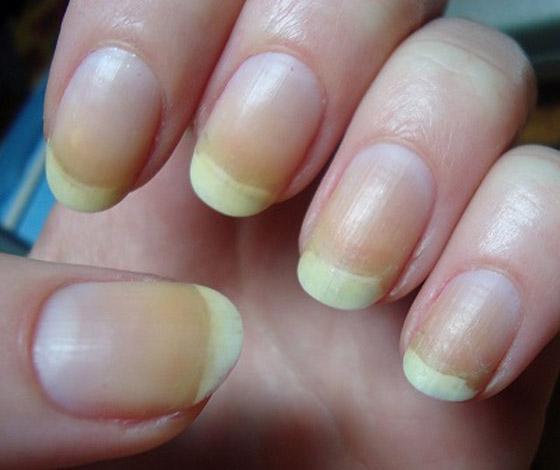الأظافر الصفراء.. الأسباب والعلامات وطرق العلاج صورة رقم 1