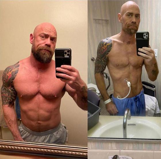 بسبب كورونا.. رياضي مفتول العضلات يفقد وزنه ويتحول لجسد نحيل! صورة رقم 3