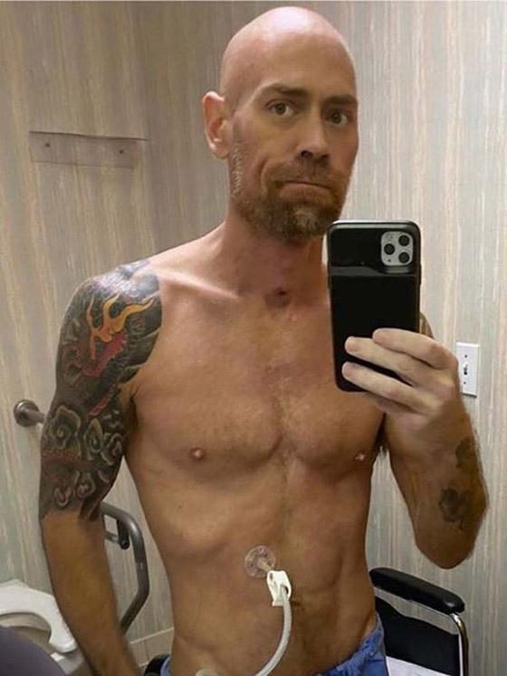بسبب كورونا.. رياضي مفتول العضلات يفقد وزنه ويتحول لجسد نحيل! صورة رقم 8